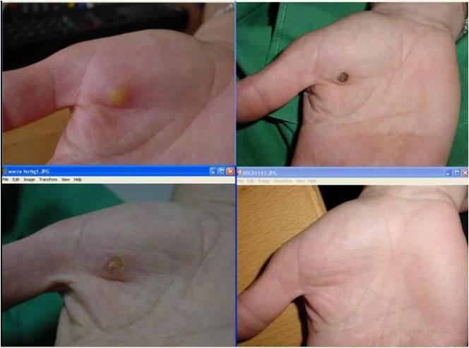 הסרת נגעי עור