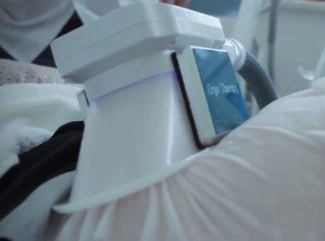 פד אנטי-פריז המגן על העור במהלך הטיפול