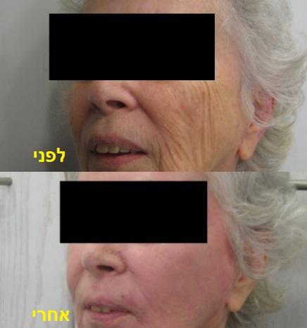 """פילינג עמוק - לפני ואחרי ד""""ר יאיר גילוני"""