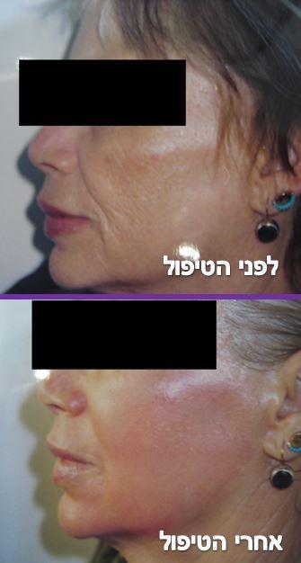 פילינג עמוק - חידוש עור הפנים