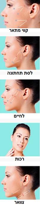 מתיחת פנים בחוטים - האזורים שבהן מבוצע הטיפול