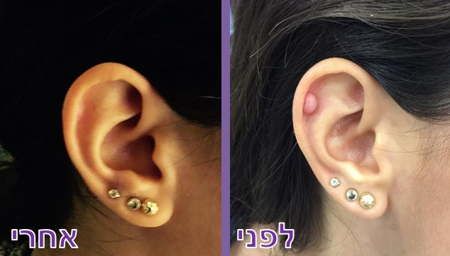 טיפול בפיברומה באוזן באמצעות Plexr