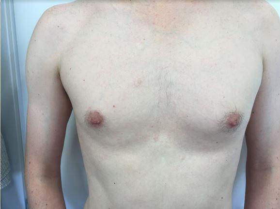קלואידים בחזה - אחרי הטיפול
