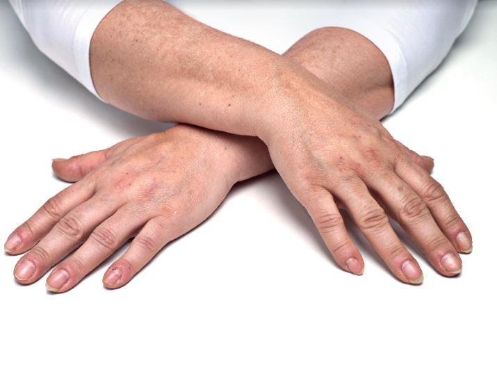 hands gilony - 5
