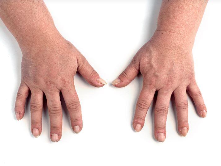טיפול להצערת גב יד - לפני-אחרי