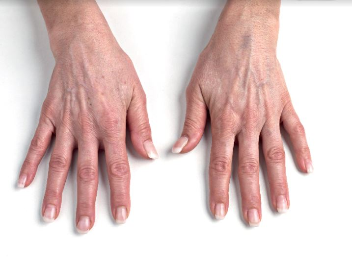 hands gilony - 7